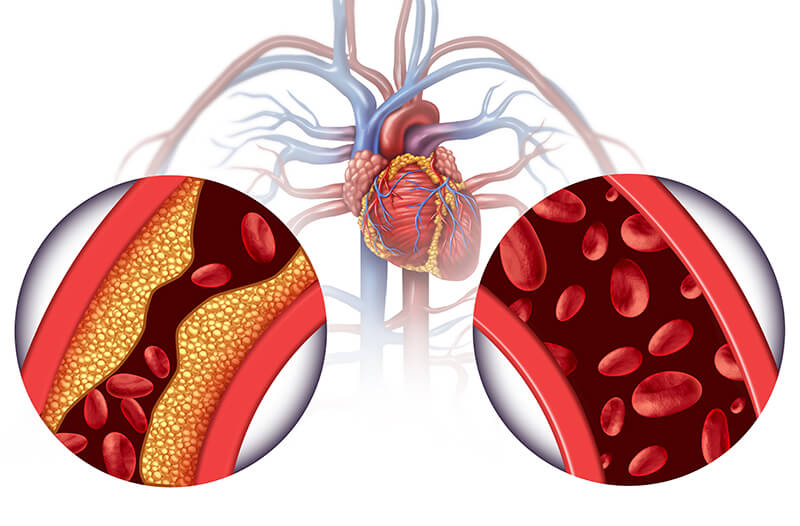 Jenis-Jenis Sistem Peredaran Darah Pada Manusia